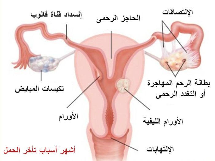 أسباب تأخر الحمل